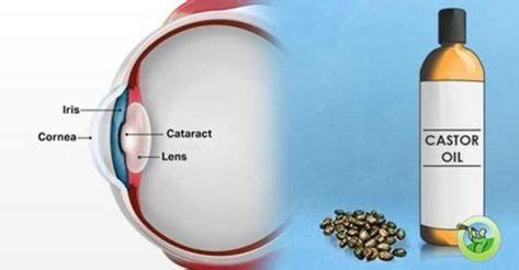 How to Use Castor Oil to Remove Cataracts and Improve