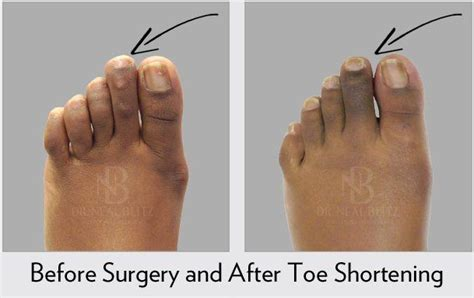 Toe Shortening Surgery - Symptoms, Causes, Recovery and