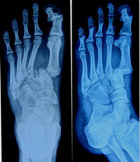 Dislocated Toe? Here is Everything You Need to Know