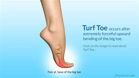 Turf Toe|Causes|Symptoms|Treatment|Recovery Period