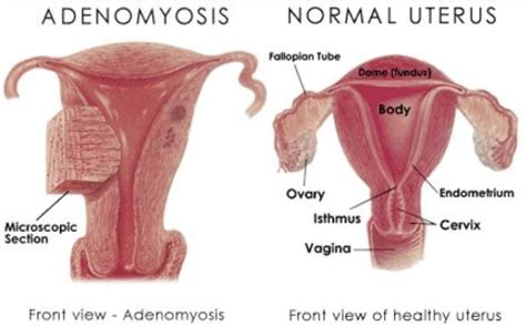 Adenomyosis - Symptoms, Ultrasound, Pictures, Treatment